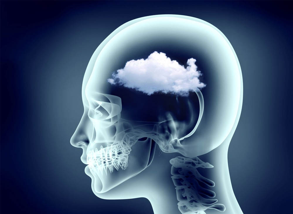 Brain fog: what it is and how to avoid it